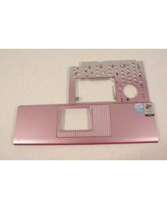Medion SIM 2090 Palmrest 307-3150511-Y31
